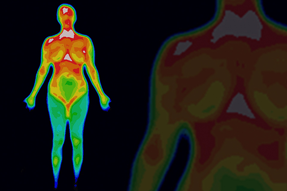 Thermography scan for breast cancer