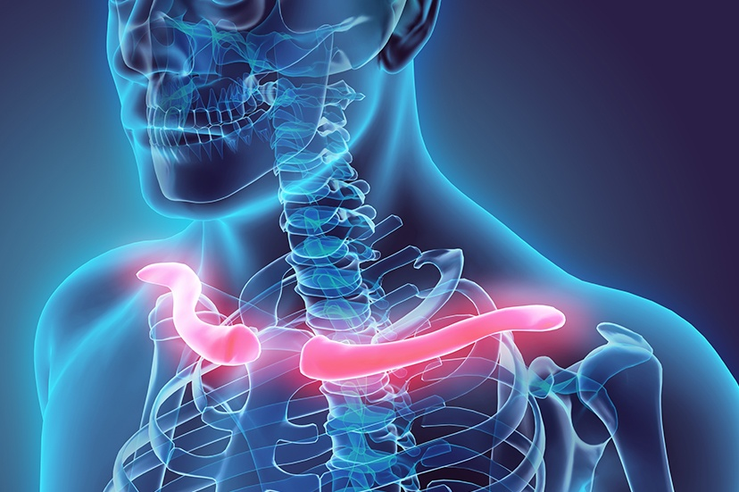 What Is a Sternoclavicular Joint Dislocation Injury?