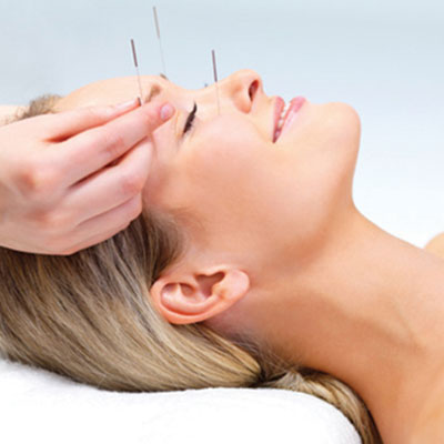 Acupuncture Sq