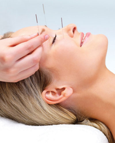 Woman receiving acupuncture treatment to her face
